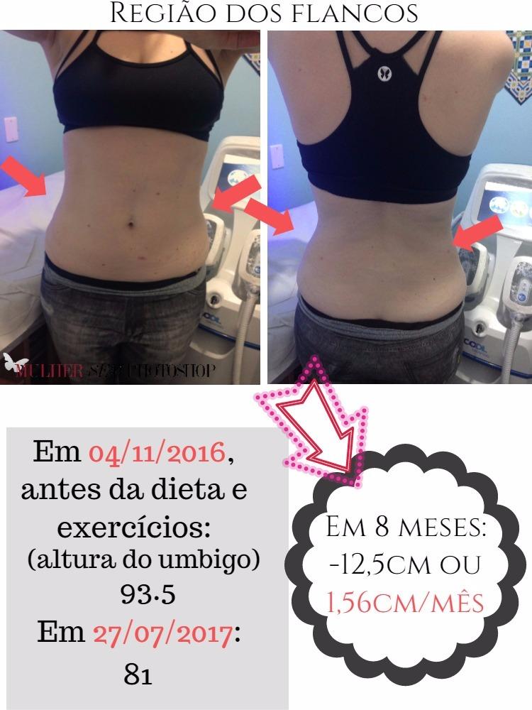 Criolipolise antes e depois - resultados